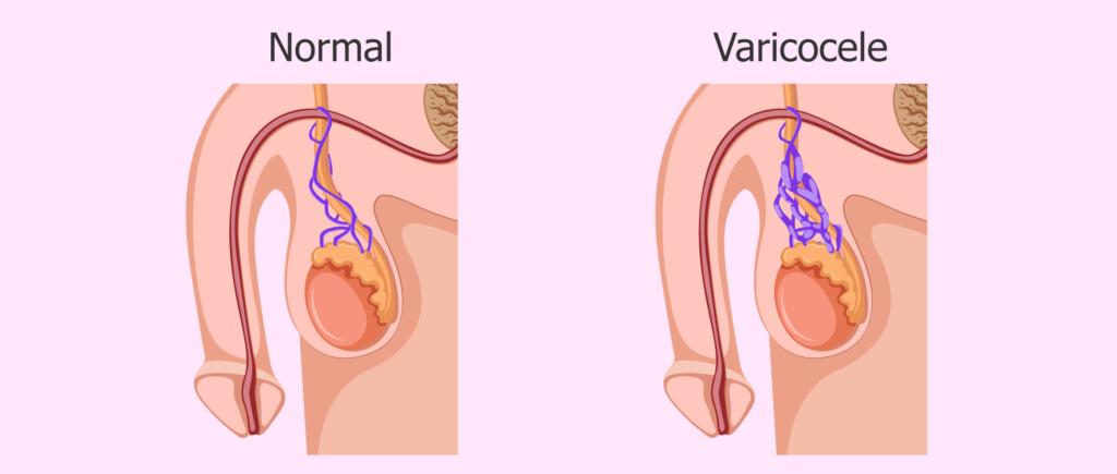 ¿Cómo afecta el varicocele la fertilidad masculina?